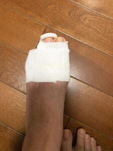 左足指骨折の状態