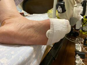 足指の骨折も裏から見た状態