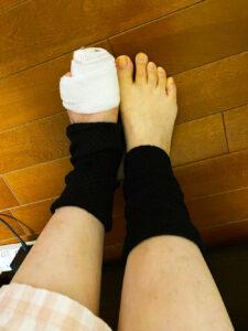 左指骨折して、レッグウォーマー履いてる足